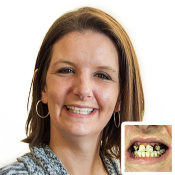 Dental Before & After at Bethesda Health Clinic